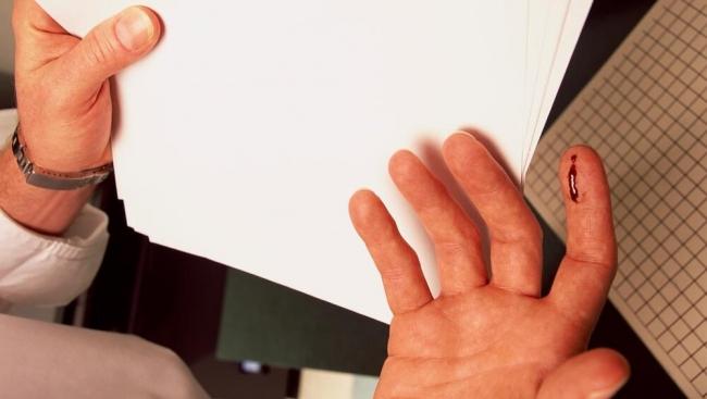 لماذا نتألم بشدة من جرح حواف الورق أكثر من الجروح العميقة؟
