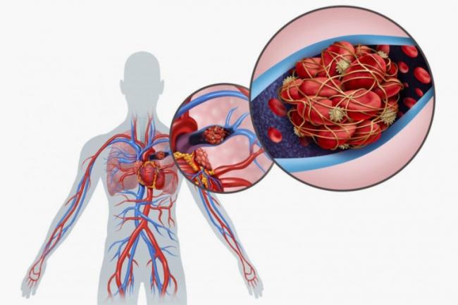 9 علامات تدل على الإصابة بسرطان الدم