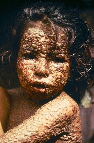 قصة طبيب هزم وباء فتك بالملايين.. وتجربة على طفل!