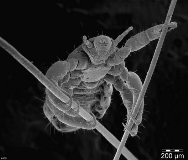 عالم خفي: 12 صورة ميكروسكوبية مدهشة لأشياء من حولنا